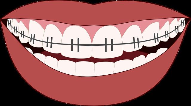 rovnátka na zubech